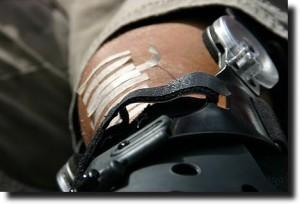Dave\'s knee under repair